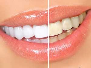 otbelivat-zubyi-doma